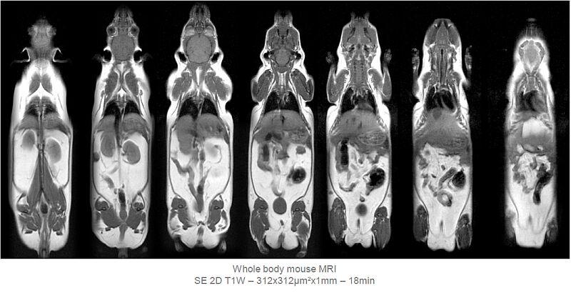 картинка: MRI.jpg