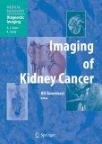 картинка: Imaging_of_Kidney_Cancer.jpg